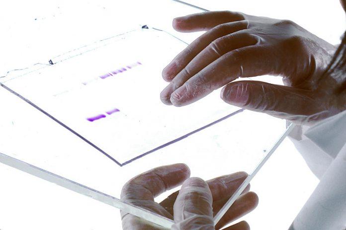 DNA Gel, Foto Wikipedia